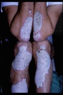 Cura di metronidazole di eczema